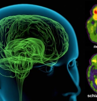 Schizophrenia is eight different diseases, not one